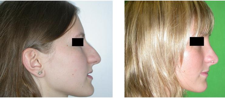 felállítás előtt és után fotó
