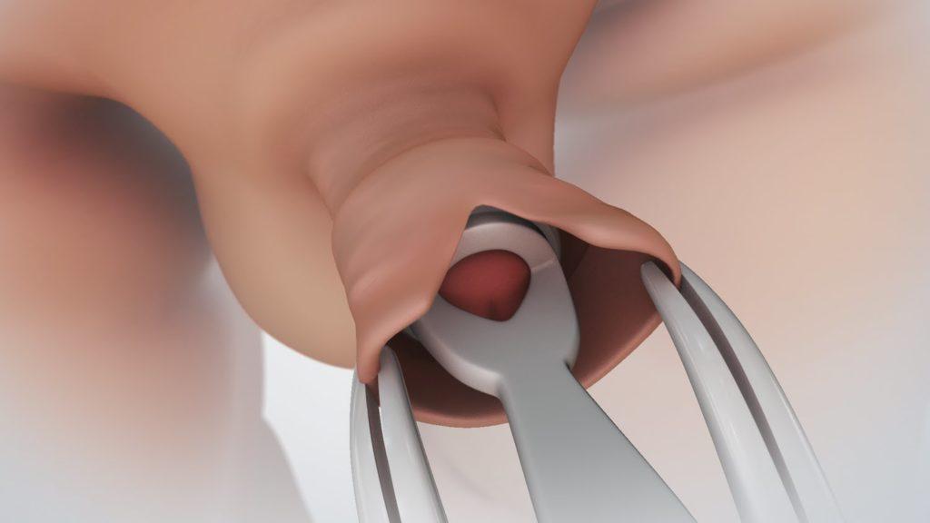 mi lehet ha a pénisz lehűlt