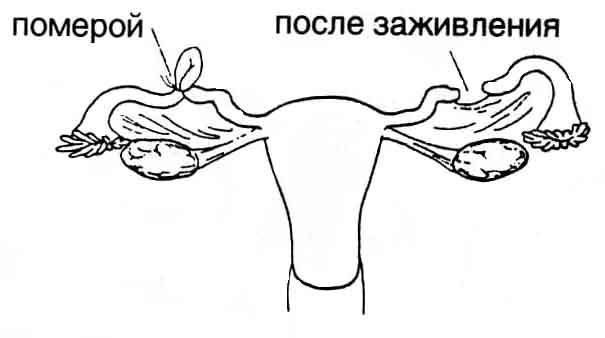 Nagyítása kifejezés Barnaul