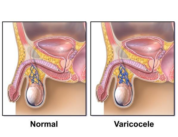 befolyásolja-e a varicocele az erekciót