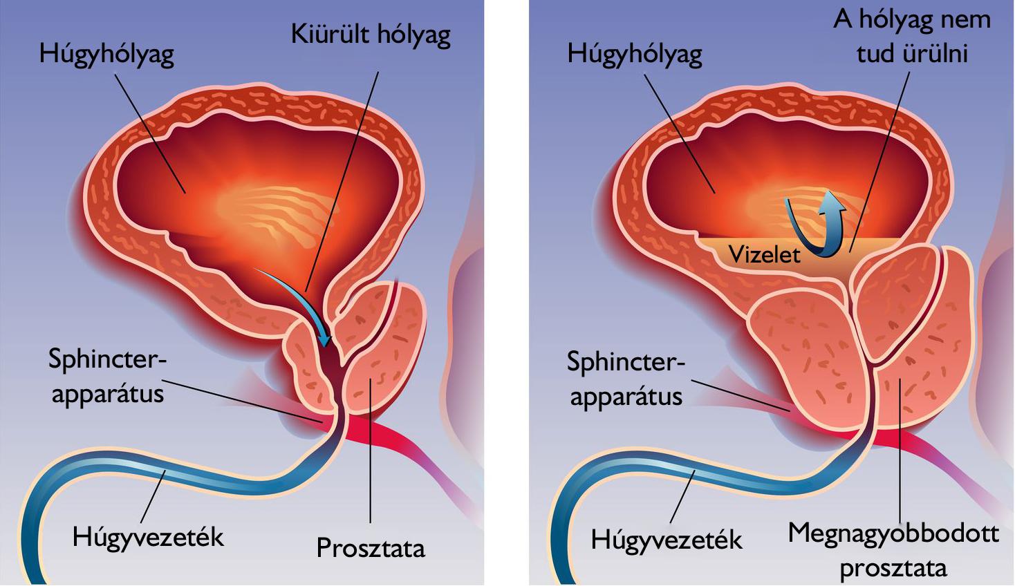 vizeletürítés az erekció során az erekció hiánya állva