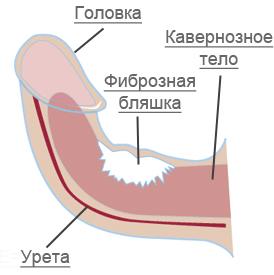 varicocele erekció
