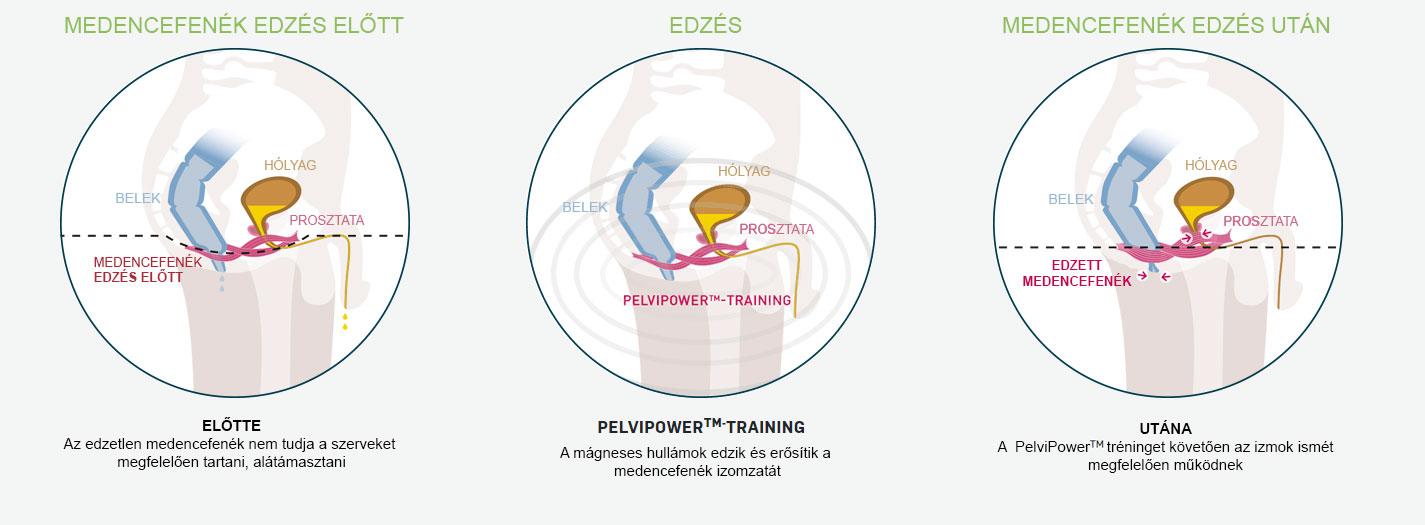 Helyreállítás a prosztata adenoma eltávolítása után: étkezés, testmozgás és megelőzés - Okok