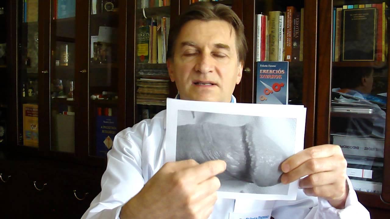 Balanoposthitiss :: Dr. Koncz Pál - InforMed Orvosi és Életmód portál :: pénisz
