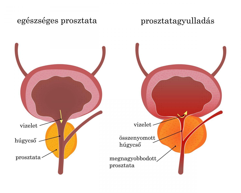 Prosztatagyulladás - Istenhegyi Géndiagnosztika Klinika