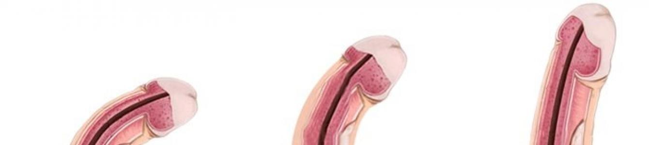 a pénisz patológiája férfiaknál