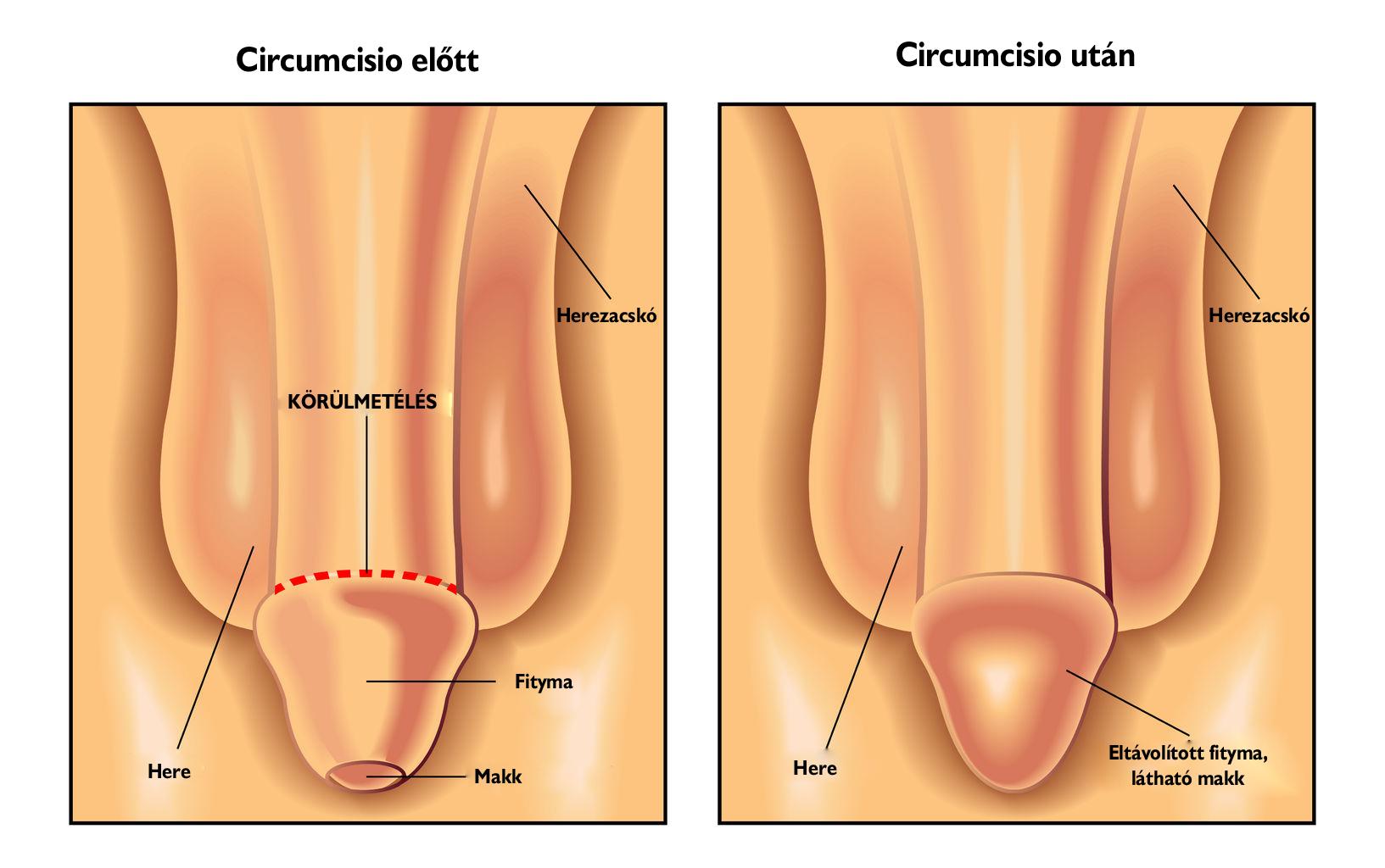 hogyan lehet valóban javítani az erekciót