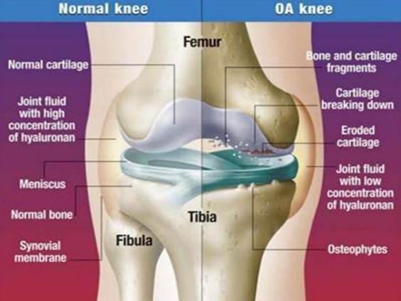 pózváltáskor az erekció csökken merevedési kezelés krónikus prosztatagyulladás esetén
