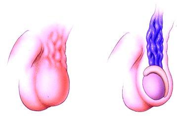 A varicocele hatására romlik-e a potencia? - Tünetek