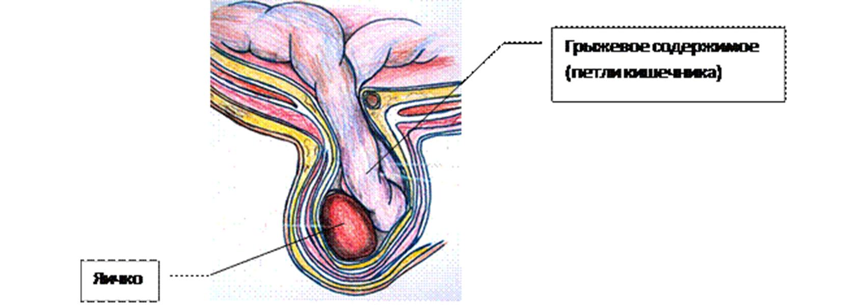 Hogyan befolyásolja a varicocele a testoszteron szintjét a szervezetben?