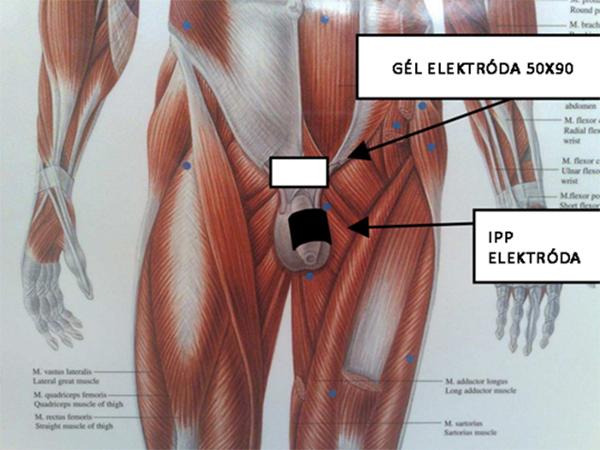 erekciós fájdalom a péniszben