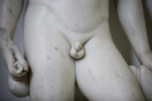 hogy a pénisz erekcióba kerüljön merevedési besorolás