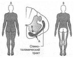 merevedés és ágyéki osteochondrosis a pénisz szokatlan alakja