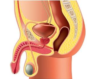 urethritis és merevedés