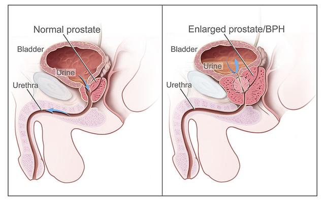 nincs prosztatagyulladás nincs erekció hogyan lehet vákuumot készíteni a péniszen