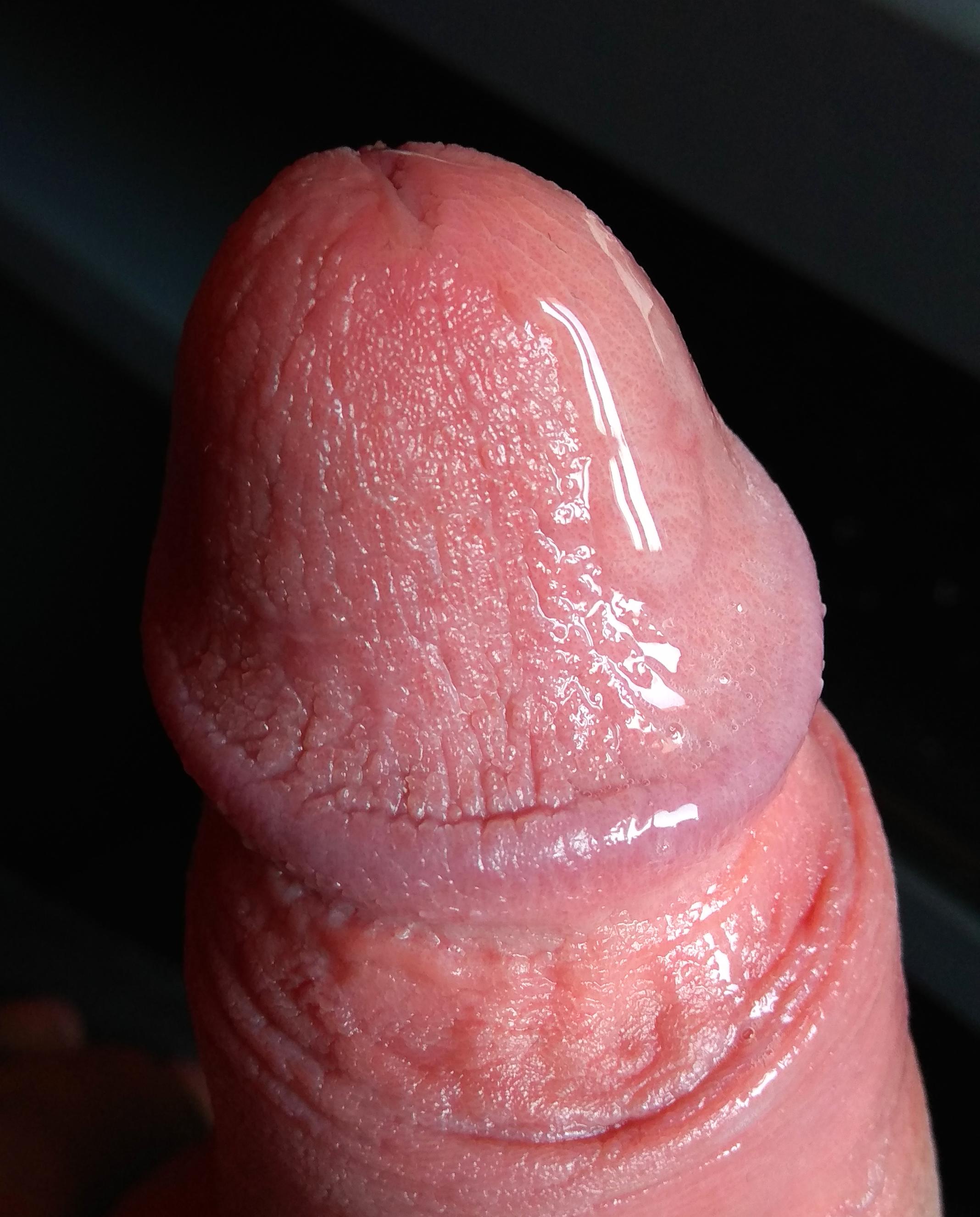 hányszor nőhet a pénisz