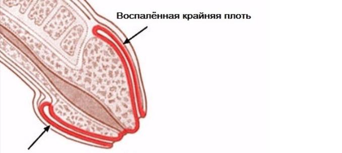 A legkisebb hímvessző