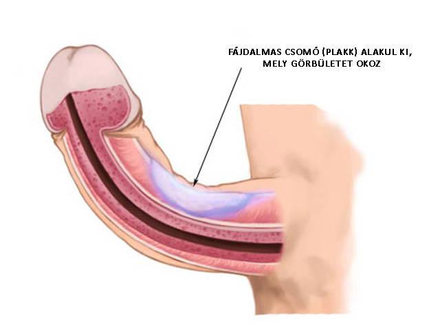 a pénisz görbülete és impotenciája