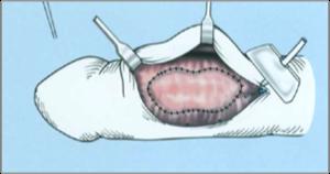 Hímvessző görbület – Dunapart Medical Magánrendelés