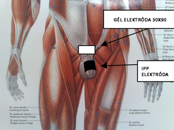 férfi erekció mi pénisznagyobbító gyakorlatok és technikák
